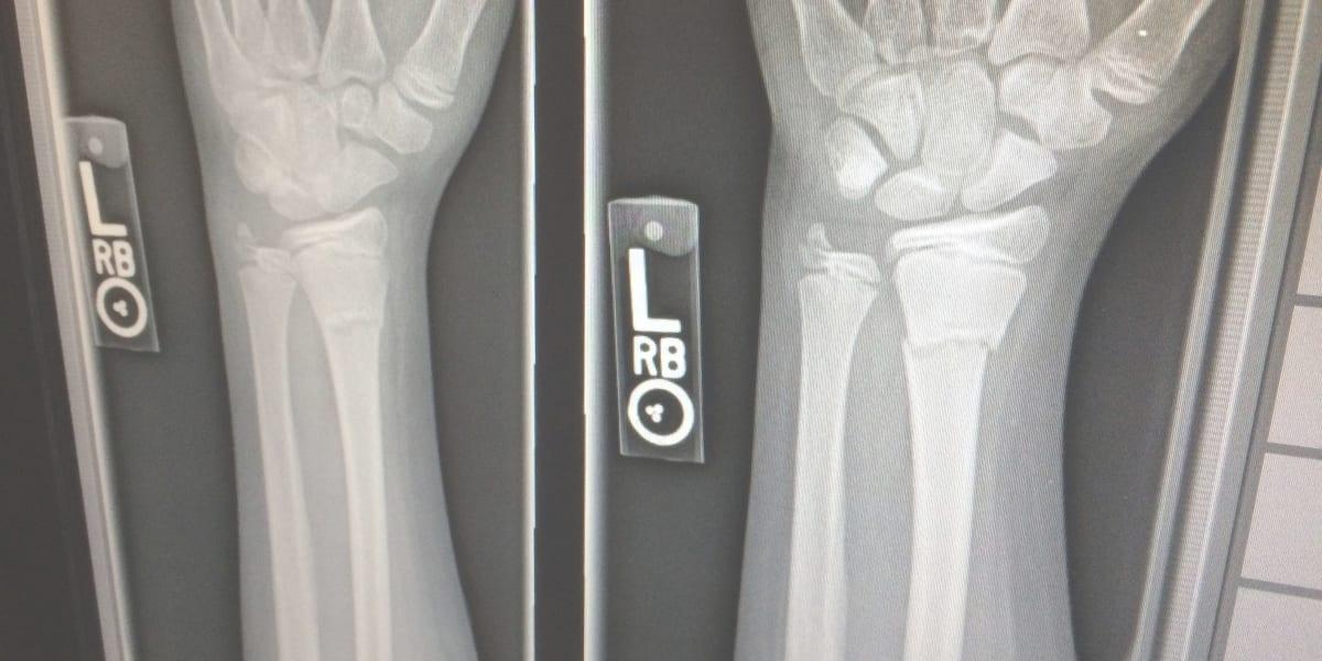 Distributor alkes radiologi